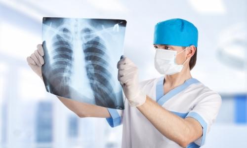 Рентген легких при диагностике пневмонии и рака легких