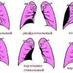 Виды плеврита по характеру расположения в легких