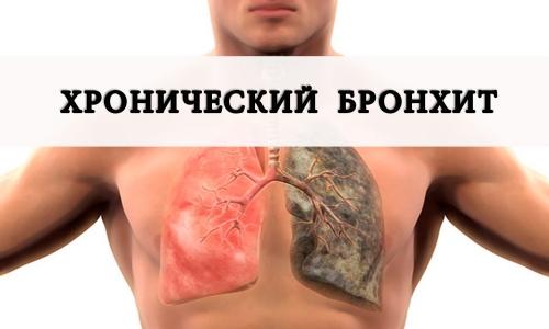 Заболевание хронический бронхит