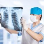 Рентгенография легких для диагностики бронхита