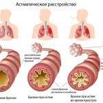 Схема астматического расстройства