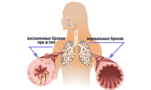 Сравнение нормальных бронхов и бронхов при астме