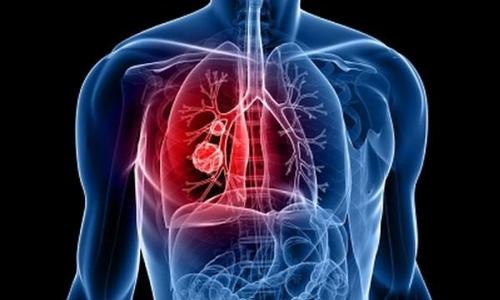 Обнаружение центрального рака легкого