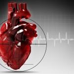 Боли в груди при инфаркте миокарда