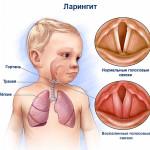 Схема ларингита у ребенка