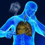 Курение - причина рака легкого