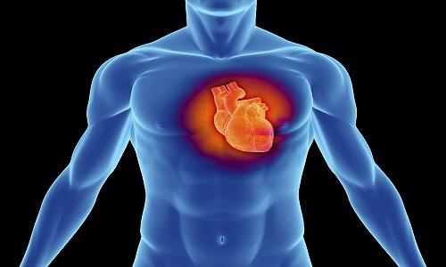 Проблема сердечной астмы