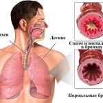 Схема спазма в бронхах при астме