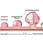 Стадии развития рака