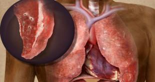 Обнаружение цирротического туберкулеза легких