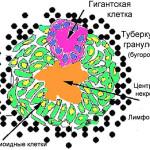 Схема туберкулезной гранулемы