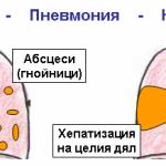Осложнение бронхопневмонии