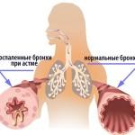 Сравнение бронхов здорового человека и при астме