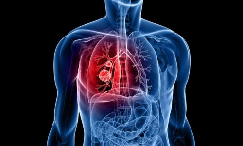 Проблема бронхопневмонии