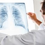 Диагностика туберкулемы с помощью рентгена