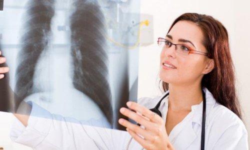 Выявление рака легких на флюорографии