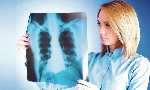 Проблема инфильтративного туберкулеза легких