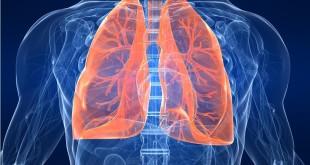 Заболевание туберкулезом