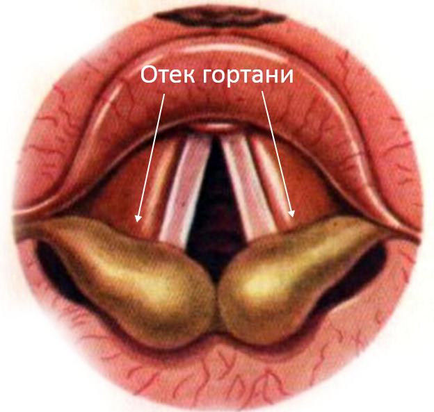 аллергия в гортани