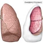 Дыхательная недостаточность при пневмотраксе