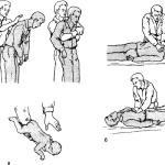 Первая помощь при асфиксии