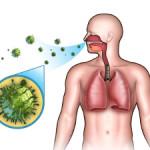 Попадание бактерий - одна из причин трахеита