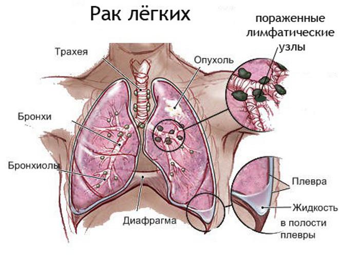 Туберкулез и рак легких в чем разница общие симптомы и отличия Схема рака легких
