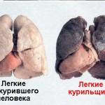 Курение - основная причина рака легких
