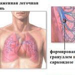 Схема саркоидоза легкого