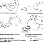 Виды эмфиземы легких