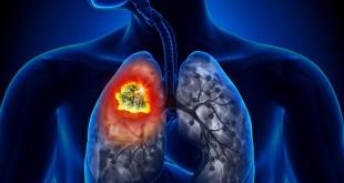 Риск появления рака легких при курении