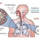 Схема первичного и вторичного туберкулеза