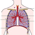 Схема воспаления трахеи