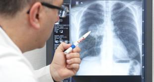 Рентген легких при синдроме Гудпашера