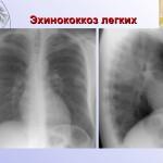 Эхинококкоз легких на рентгене