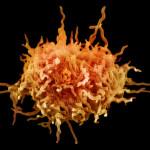 Микоплазма - возбудитель пневмонии
