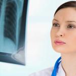Рентген легких для диагностики пневмоторакса