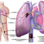 Схема инфаркта легкого