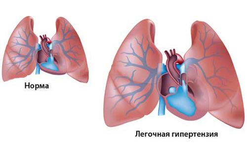 Схема легочной гипертензии