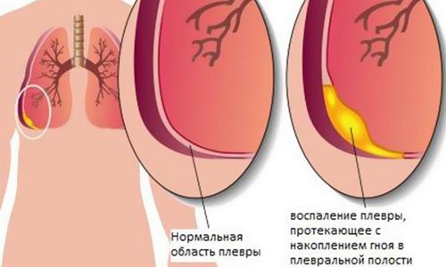 Схема воспаления плевры при гидротораксе