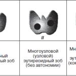 Стадии развития зоба щитовидной железы