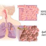 Схема фиброза легких