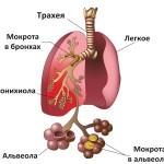 Пневмония - причина ОРДС