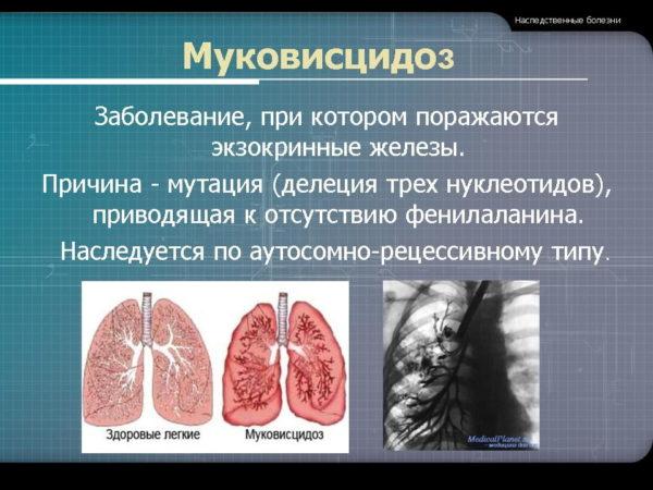 что за болезнь муковисцидоз
